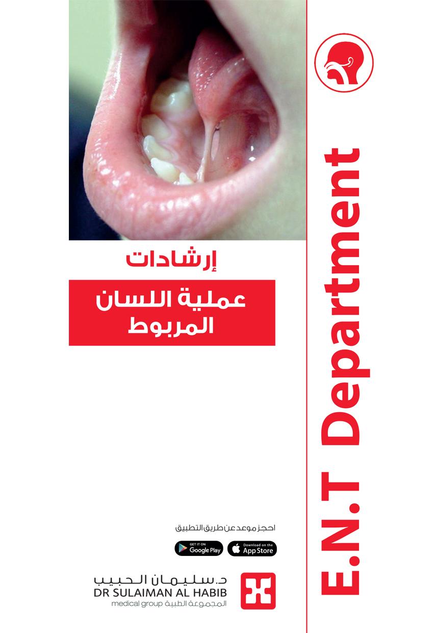 Linked Tongue