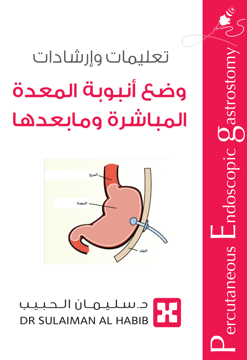 Percutaneous Endoscopic Gastrostomy